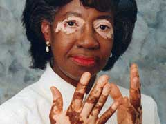 Vitiligo Facts