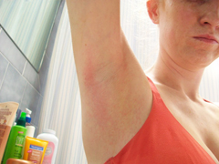Armpit Rash and Odor