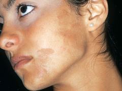Best Treatment For Hyperpigmentation