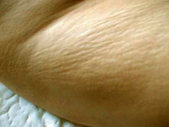 Stretch Mark Surgery